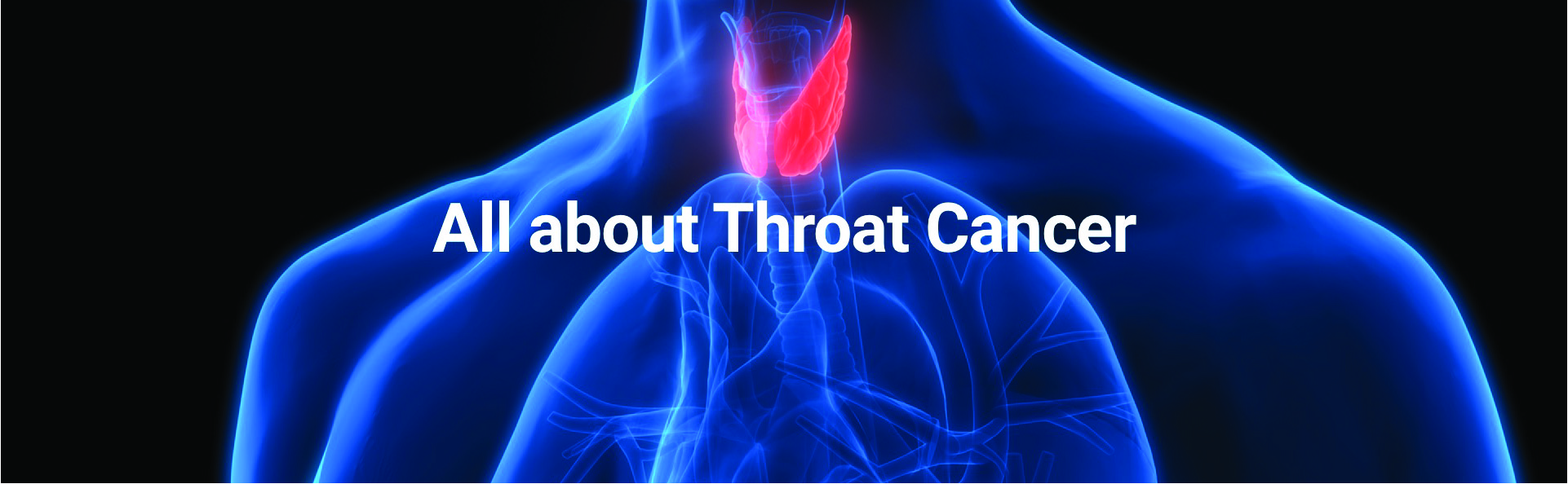 All About Throat Cancer