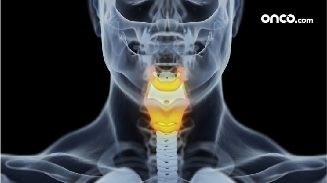 Illustration of stage 2 throat cancer with anatomy
