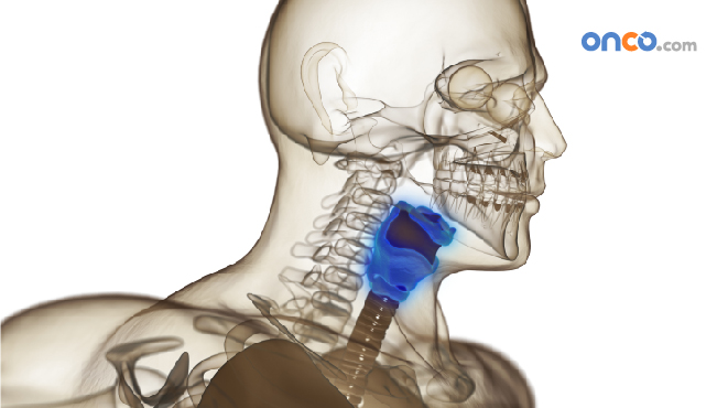 Illustration of stage 3 throat cancer with anatomy