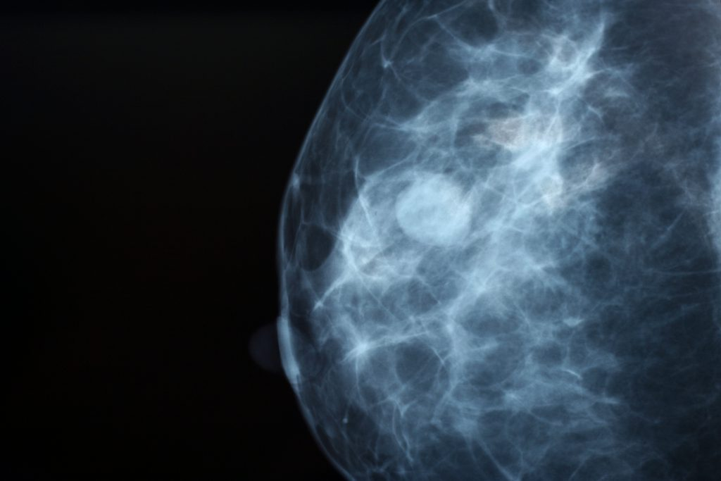 Early tumor in mammogram