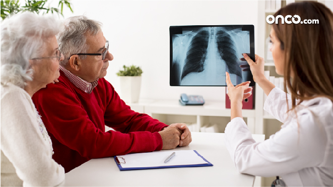 Picture of a doctor explaining early stage NSCLC to a patient