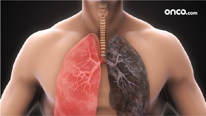 surgery for lung cancer