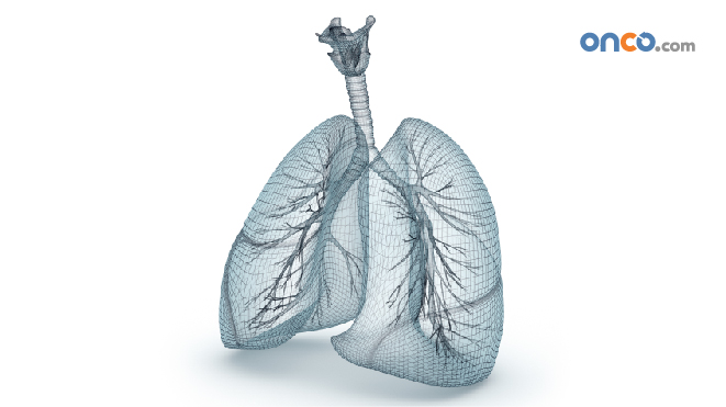 3D representation of lungs