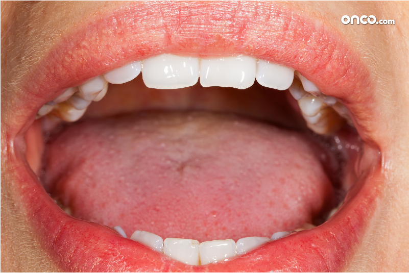 Photograph representative of a mouth cancer patient