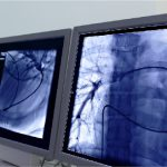 Picture of a lung cancer diagnosis on a computer screen