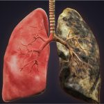 Visual representation of one lung completely affected NSCLC