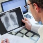 Picture of a doctor reviewing a lung cancer patient's file diagnosed with limited stage SCLC