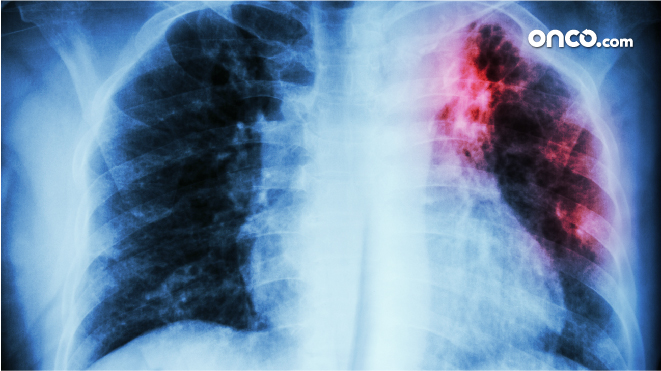 Picture of a lung cancer screening
