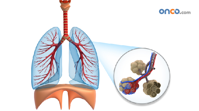 Visual representation of lungs where the infected area is highlighted