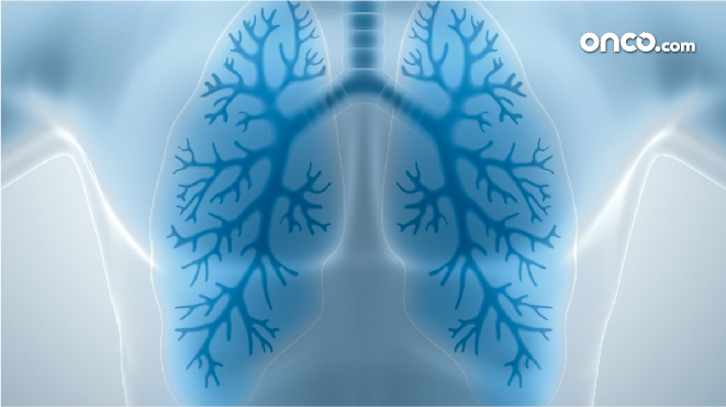 Visual representation of lungs