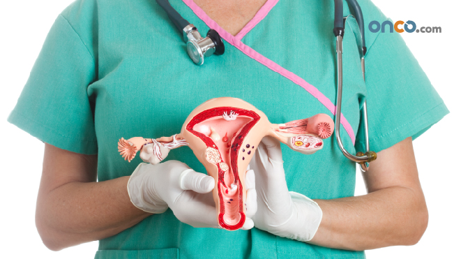 Photograph of surgeon holding a 3d scale model of the ovaries, to explain stage 3 ovarian cancer