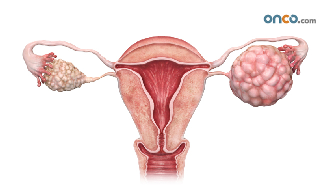 Is ovarian cancer hereditary?