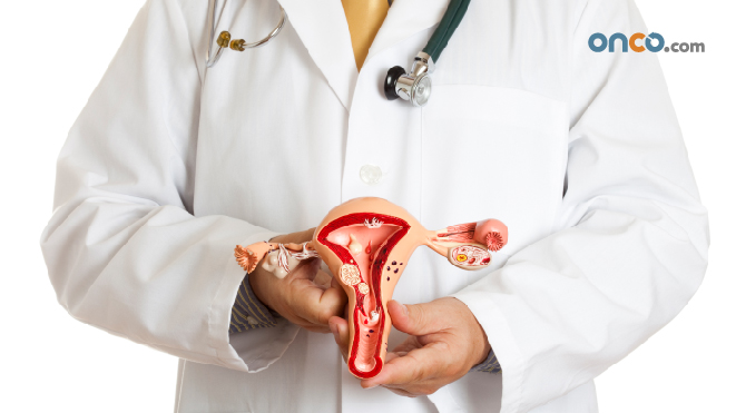 Photograph of doctor holding a 3d scale model of the ovaries, to explain stage 2 ovarian cancer
