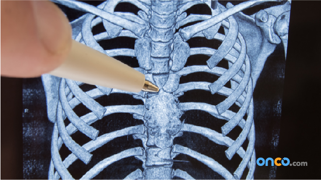 Follow Up After Bone Cancer Treatment | Onco.com | Recurrent Bone Cancer