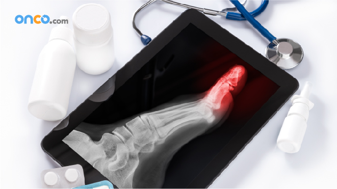 Picture of a patient's foot with possible bone cancer