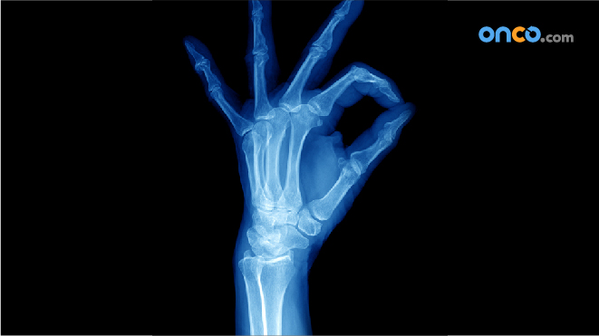 Picture of a x-ray of a hand