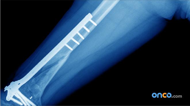 Implants in bone cancer treatment