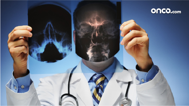 Picture of a doctor holding a X-Ray