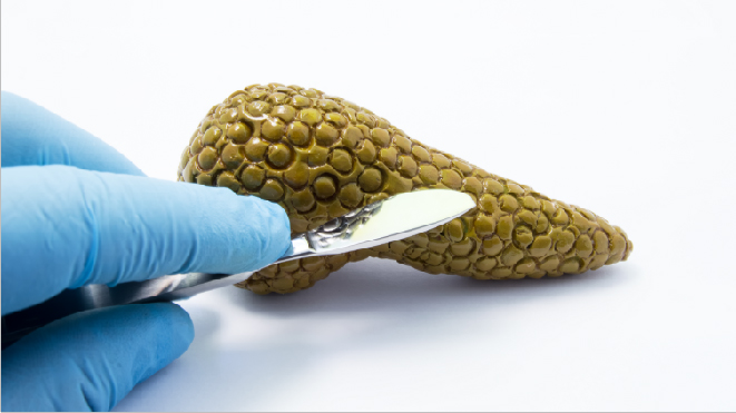 Picture of a 3D pancreas cut by a knife