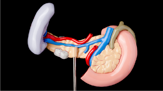 Picture of a anathomically correct pancreas