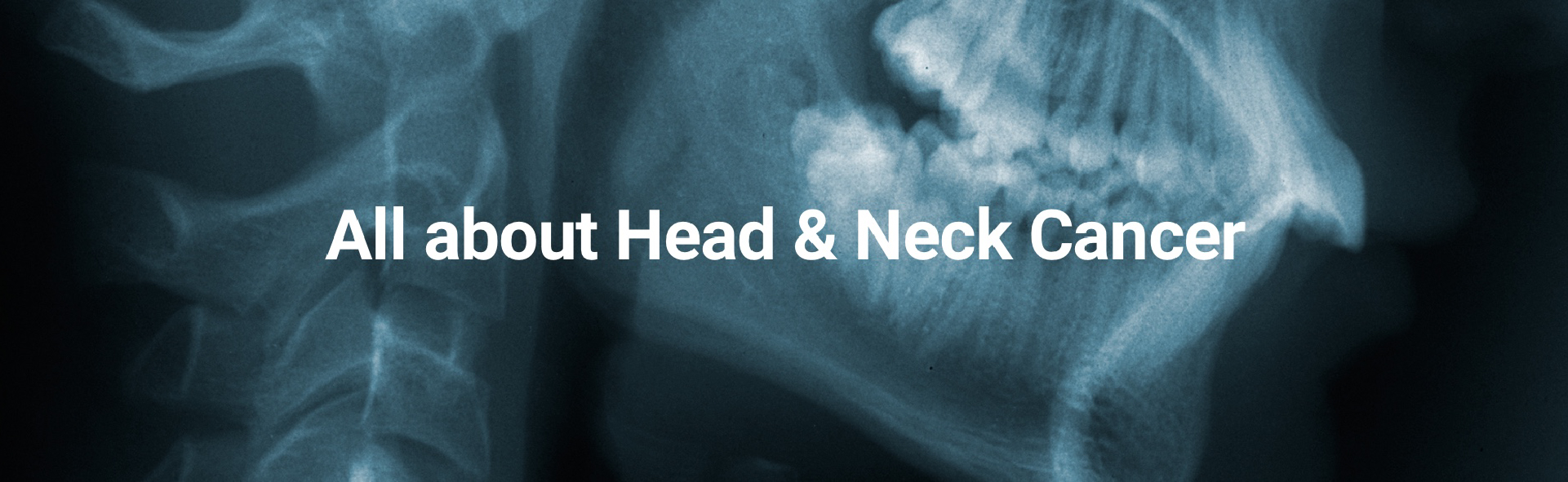 All About Head  And Neck Cancer