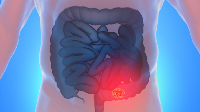 Visual representation of areas of colon cancer