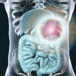 Visual representation of colon cancer under a microscope