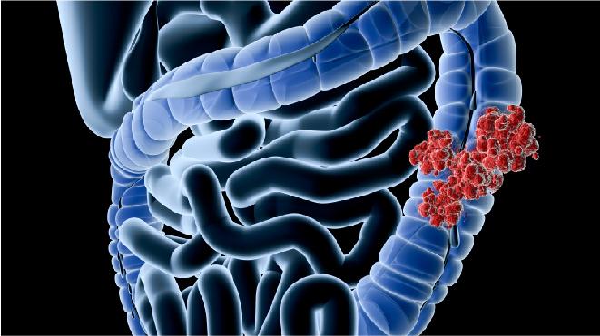 Visual representation of colon cancer in a large intestine
