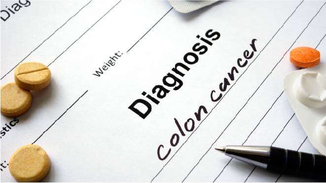 Picture of a diagnosis of colon cancer