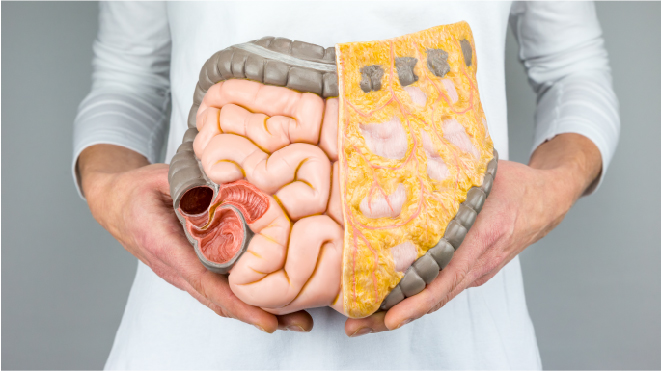 Picture of a person holding a 3D large intestine