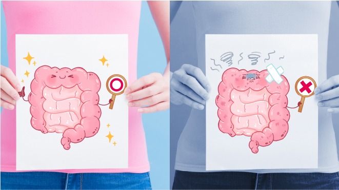 Picture of a human holding a drawing of a large intestine