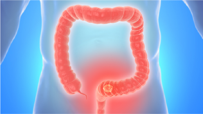 Visual representation of colon cancer in a human