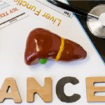Picture of a 3D liver with the words cancer