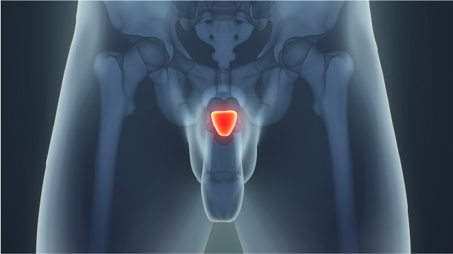 Visual representation of prostrate cancer highlighted