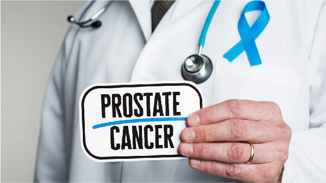Picture of a doctor holding a note with prostrate cancer written on it