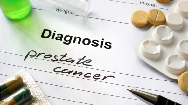 Picture of a doctor's report where the diagnosis is prostrate cancer