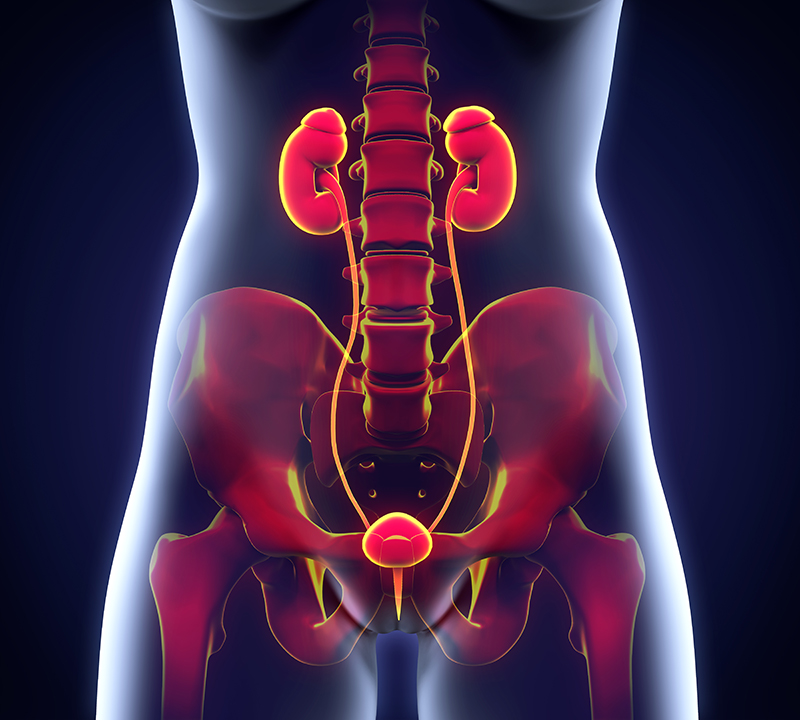Visual representation of cancer affecting the bladder