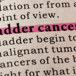 Bladder Cancer Treatments And Surgery