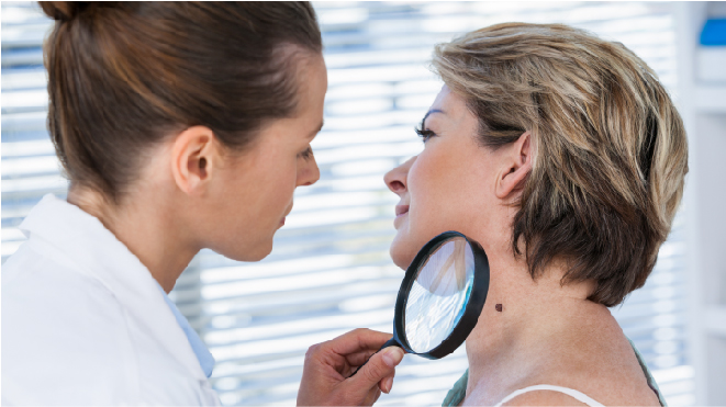 Causes and Risk Factors of Skin Cancer