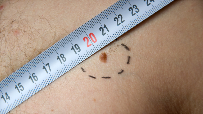 Picture of a measuring tape on the skin lesion