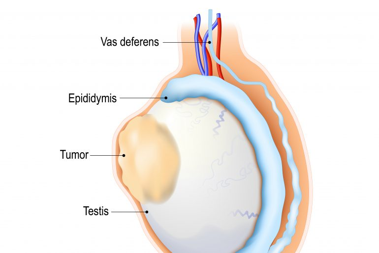 testicular cancer causes