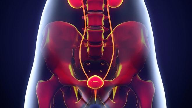 Treating stage 0 bladder cancer