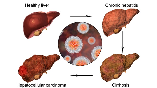 Visual representation of a healthy liver to an unhealthy liver