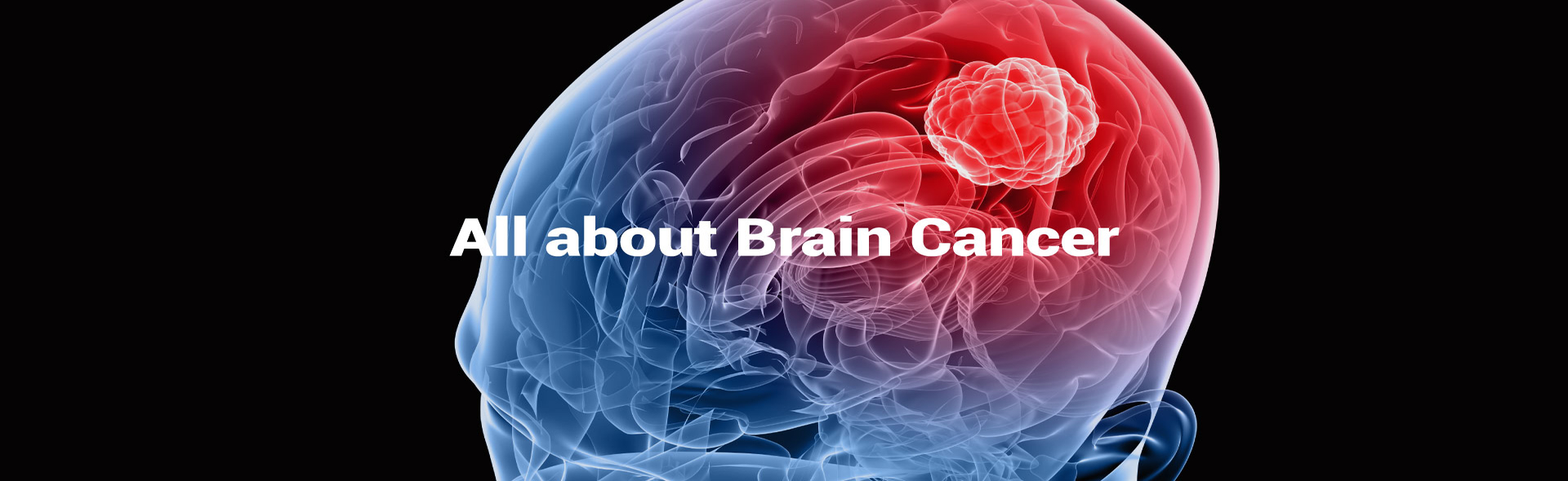 All About Brain Cancer