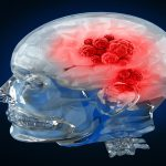 Visualisation of a human with brain cancer