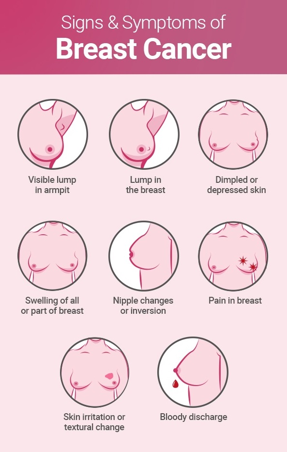 What Is Breast Cancer Its Types Signs Causes Treatments Onco