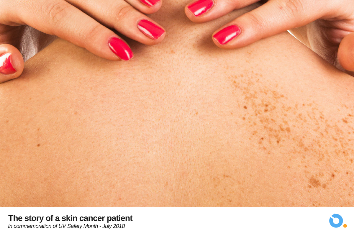 Skin cancer is no less terrifying than 'regular' cancers