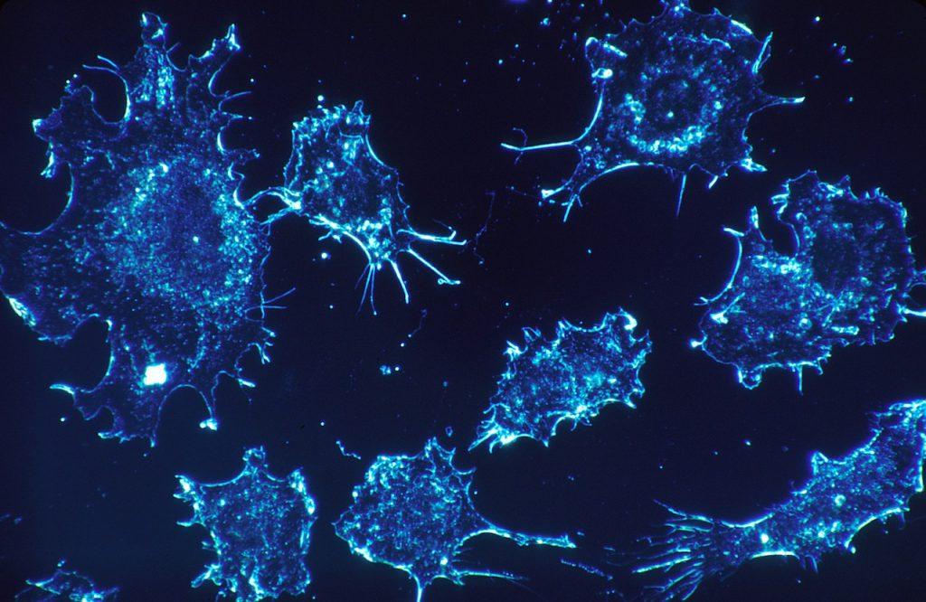 Let's Understand Metastasis