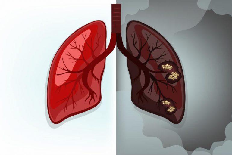 lung cancer info