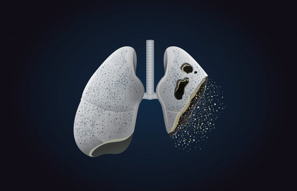 7 symptoms of lung cancer